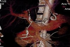 КТ ангиография после операции